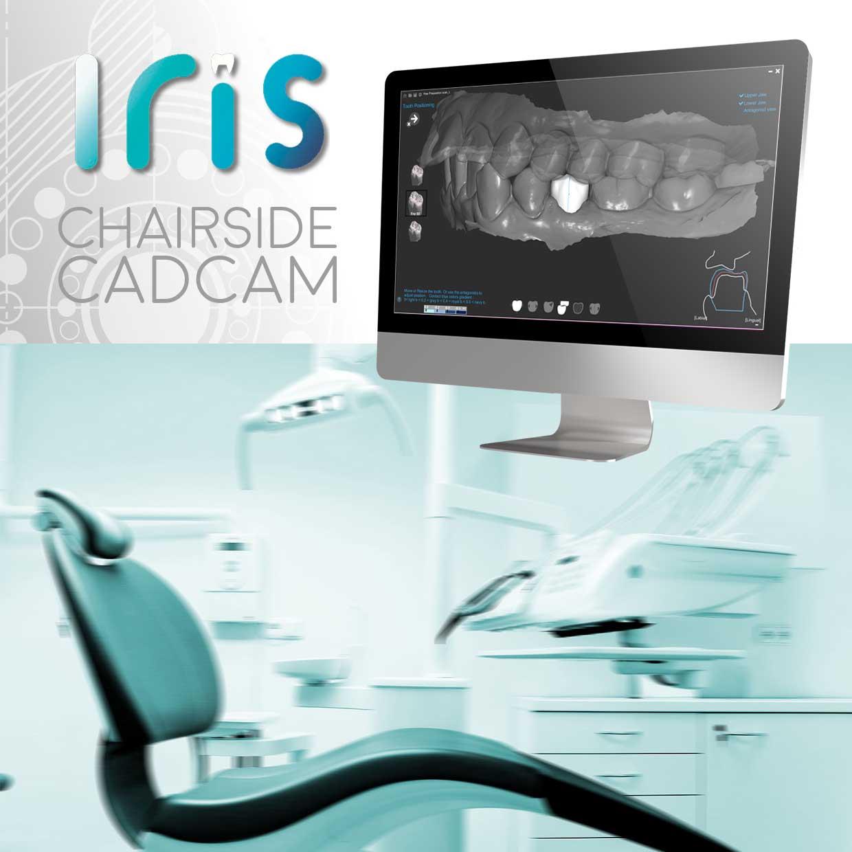 Iris chairside cadcam